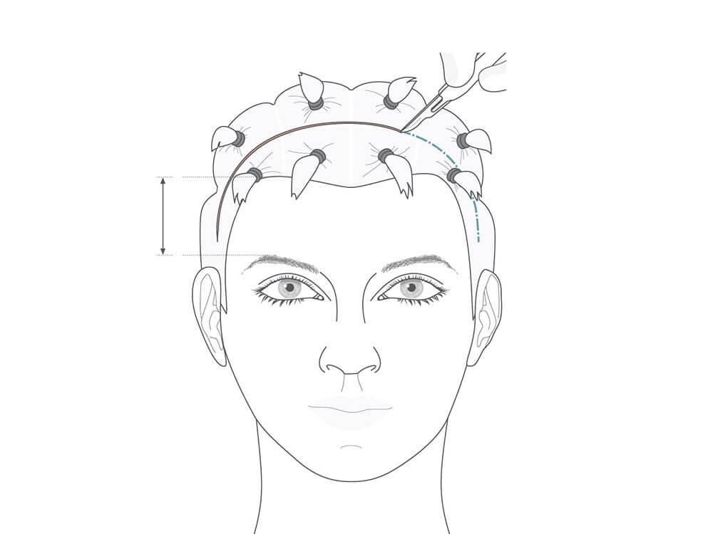 Bei einem coronaren Stirnlifting verläuft der Hautschnitt bogenförmig innerhalb der behaarten Kopfhaut.
