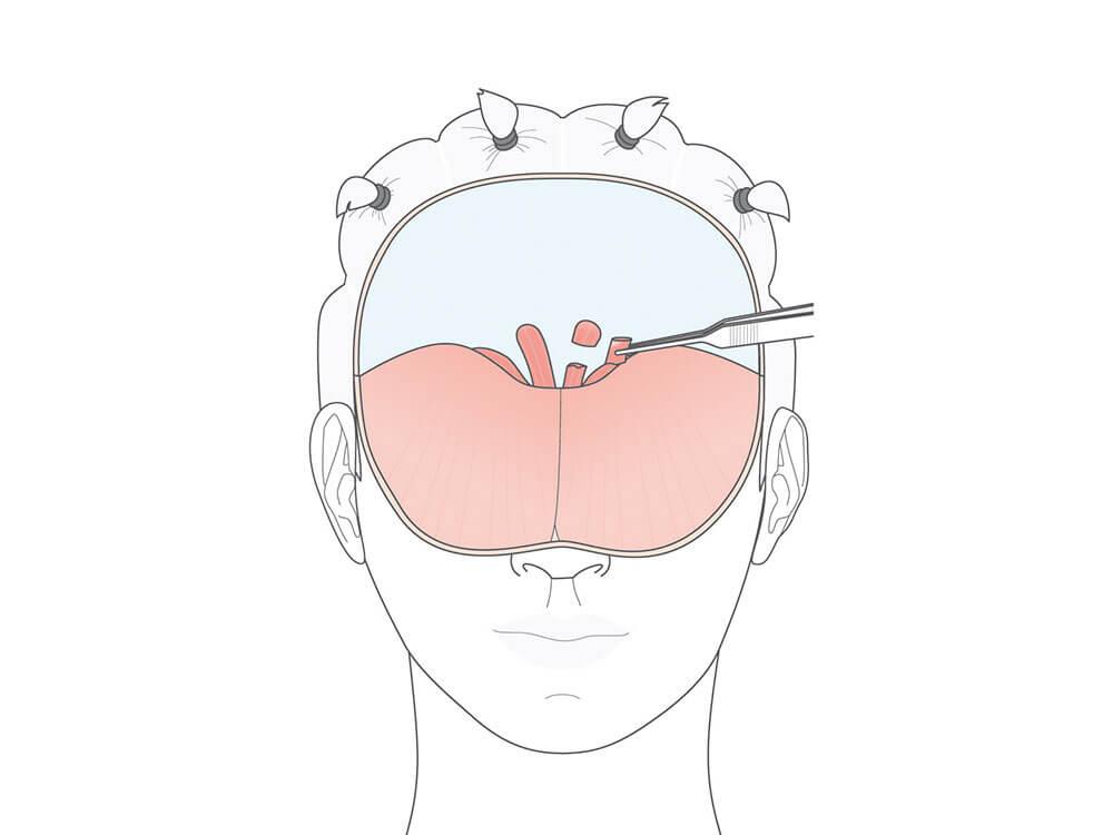 Das prätrichiale Stirnlifting eignet sich für die Beseitigung von Stirnfalten und der Anhebung der Augenbrauen und führt zu einer niedrigeren Stirn.