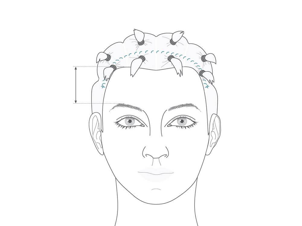 Beim endoskopischen Stirnlifting wird kein Hautüberschuss entfernt, daher entstehen fast keine Narben.