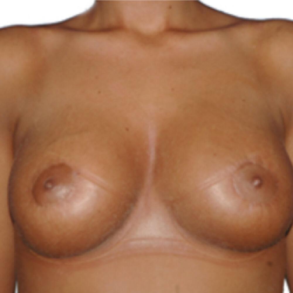 Brustvergroesserung mit Implantaten nachher