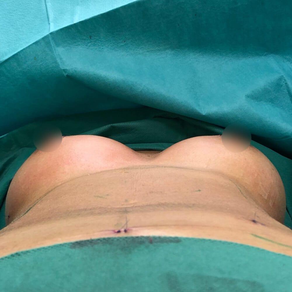 Brustvergrosserung Eigenfett nach der OP