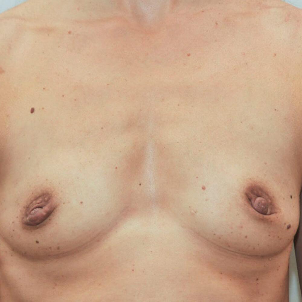Ergebnis nach Brustvergrößerung mit Eigenfett