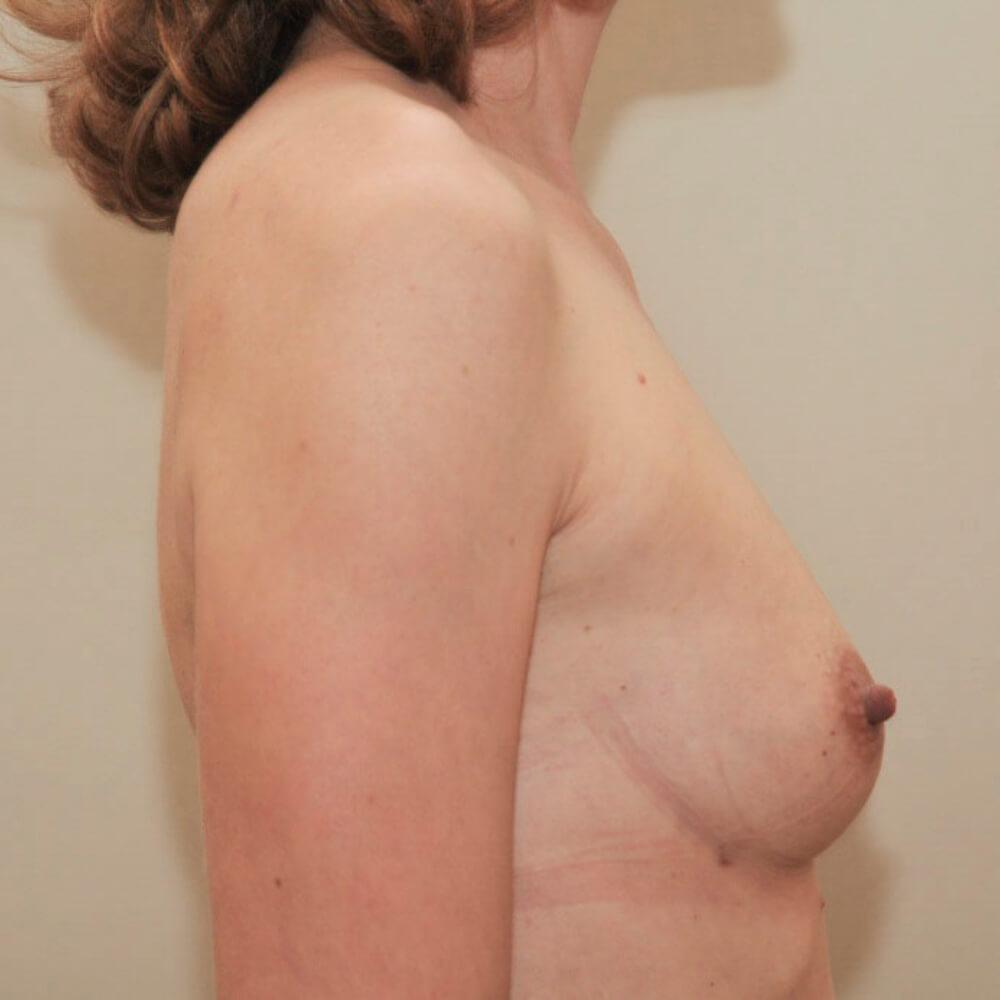 Natürliche Brüste durch Eigenfett