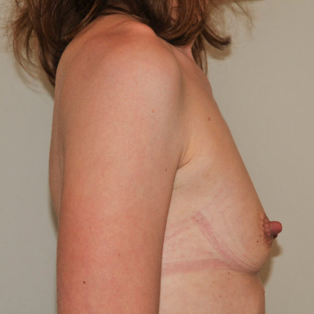 Natürliche Brustvergrößerung